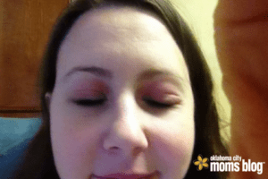The start of my eye lids swelling shut Christmas Eve 2014